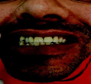 DenteCapa